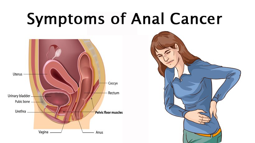 Anal Cancer Rates and Deaths Are on the Rise in United States