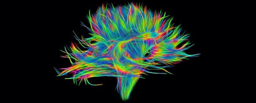 Landmark Survey Observes Neurons Extremely Susceptible to Alzheimer's Disease!!!
